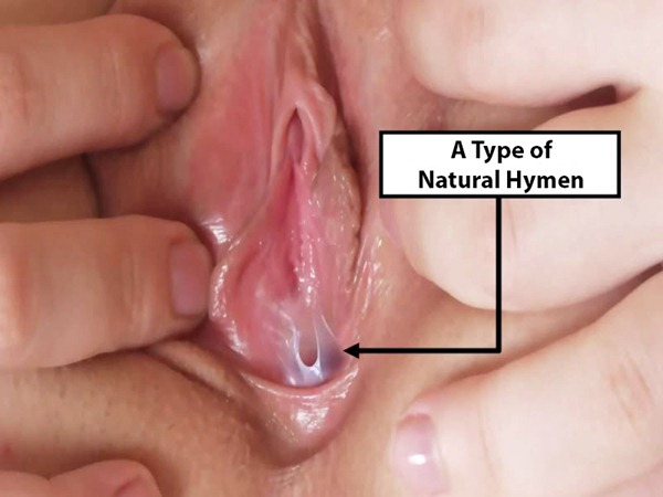 There can Female hymen naked photo authoritative