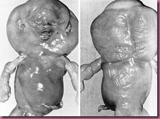 Monosomy X abortus
