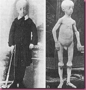 Early documented case of progeria, c. 1905._400